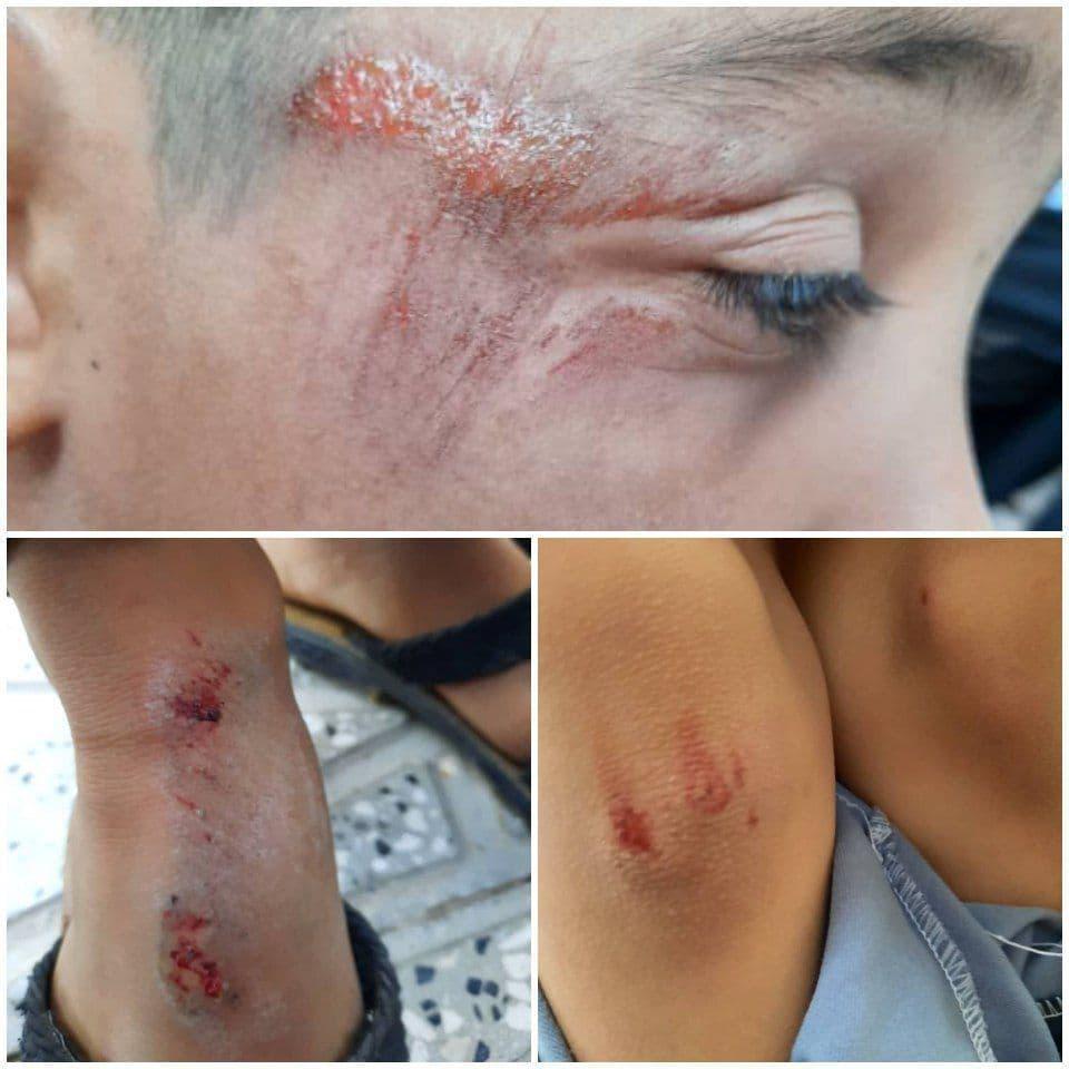 زخمی شدن دختربچه ۱۰ ساله باخرزی در پی حمله سگهای ولگرد/قابلتوجه مسئولان عزیز در رشتخوار